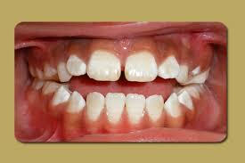 Anterior Tongue Thrust Anterior Open Bite